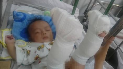 Nghi vấn bé 4 tháng tuổi bị cha đánh gãy chân, xuất huyết não