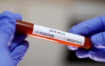 Trung Quốc đưa đợt vắc-xin chống COVID-19 đầu tiên vào thử nghiệm trên động vật