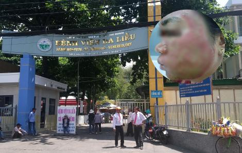 Tốn 40 triệu đồng lăn kim làm đẹp, người phụ nữ bị ứ mủ cả gương mặt