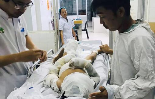 Bé trai bị dì tẩm xăng đốt còn bị tổn thương mắt