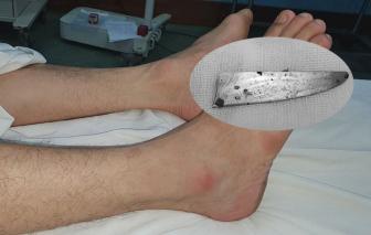 Nam thanh niên bị lưỡi dao cắm vào chân 3 năm không hay biết